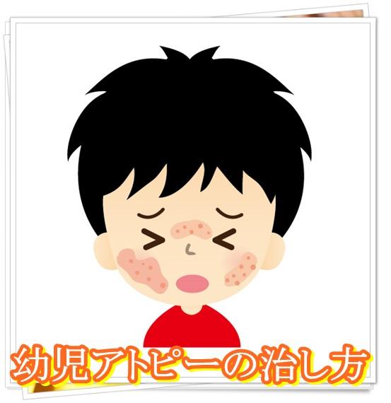 幼児アトピーの症状と原因まとめ!適切な予防・対策や食事で治る?