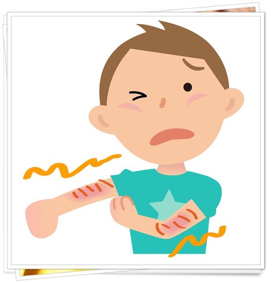 幼児アトピーの症状と原因まとめ!適切な予防・対策や食事で治る?1