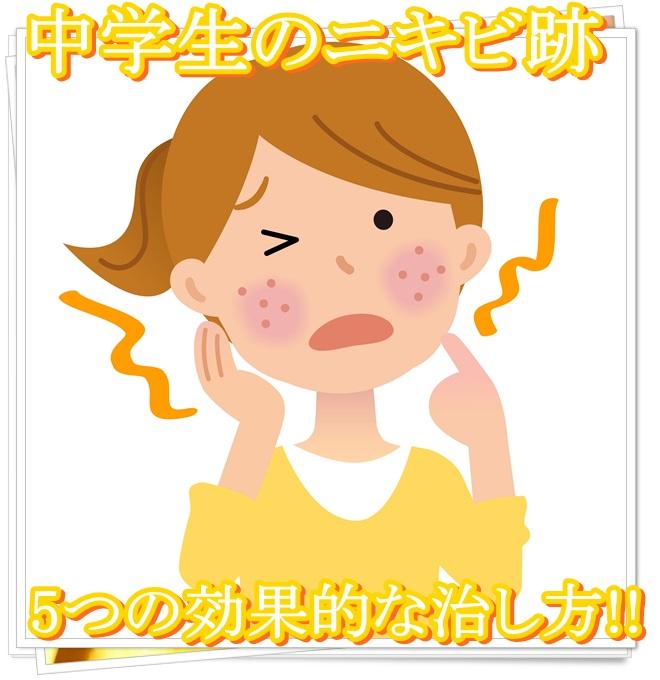 中学生のニキビ跡は化粧水で消すことが?5つの効果的な治し方とは
